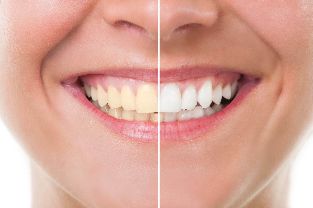 An Overview Of Spotlight Strips Teeth Whitening